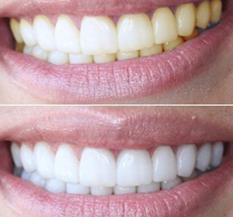 Услуги по отбеливанию зубов