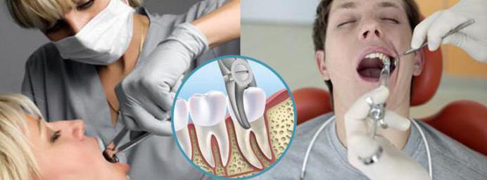 Можно ли курить если вырвали зуб