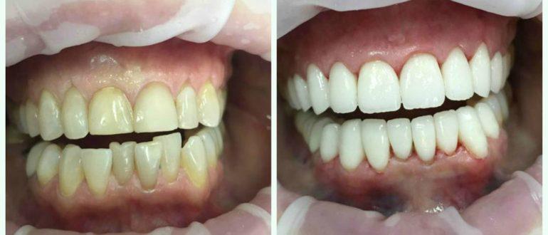 Можно ли виниры на кривые зубы