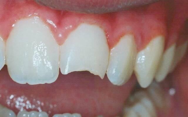 Хрупкая эмаль зуба