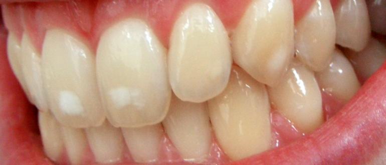 Белые пятна на зубах у взрослых