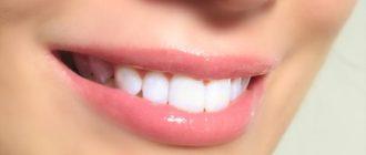 Делает зубы белее