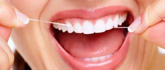 Когда пользоваться зубной нитью