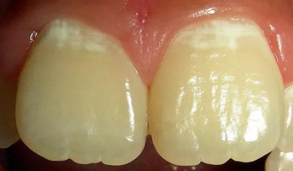 Белые пятна на зубах у взрослых при кариесе фото
