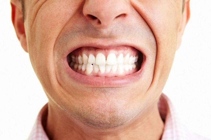 Скрип зубами во время сна