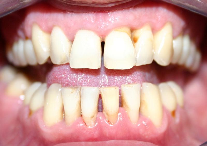 Причины ослабления зубов