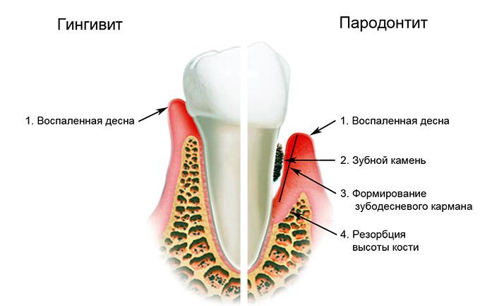 Пародонтоз или гингивит