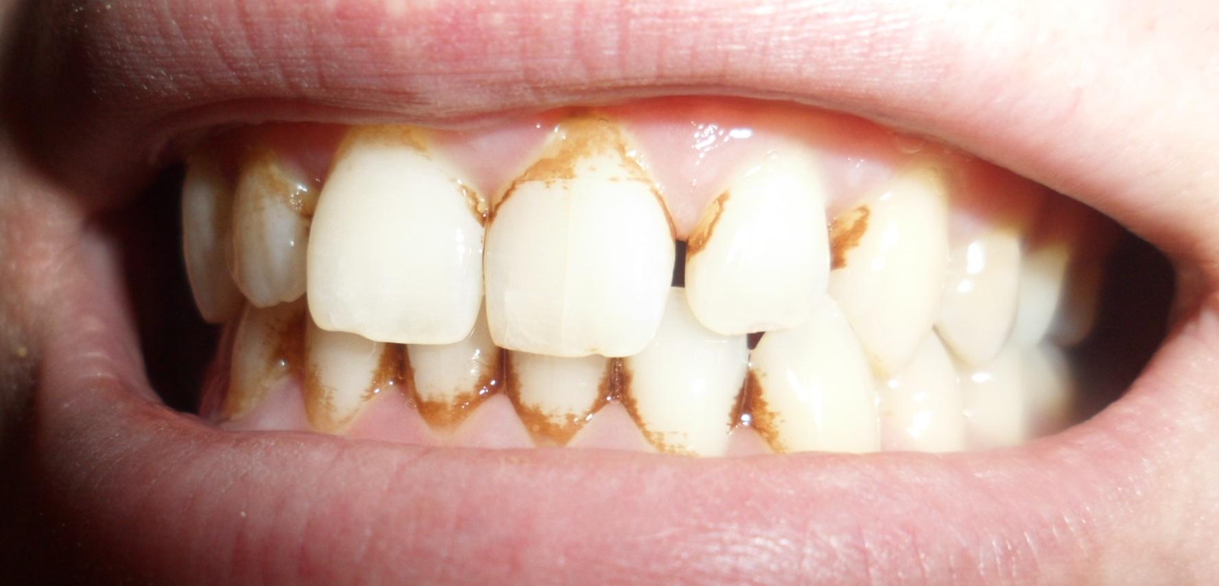 Темный налет на зубах