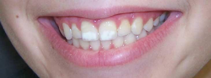 Белые пятна на зубах у взрослых фото