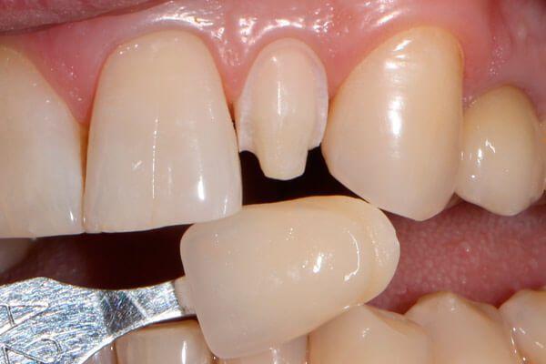 Обточенный зуб и винир