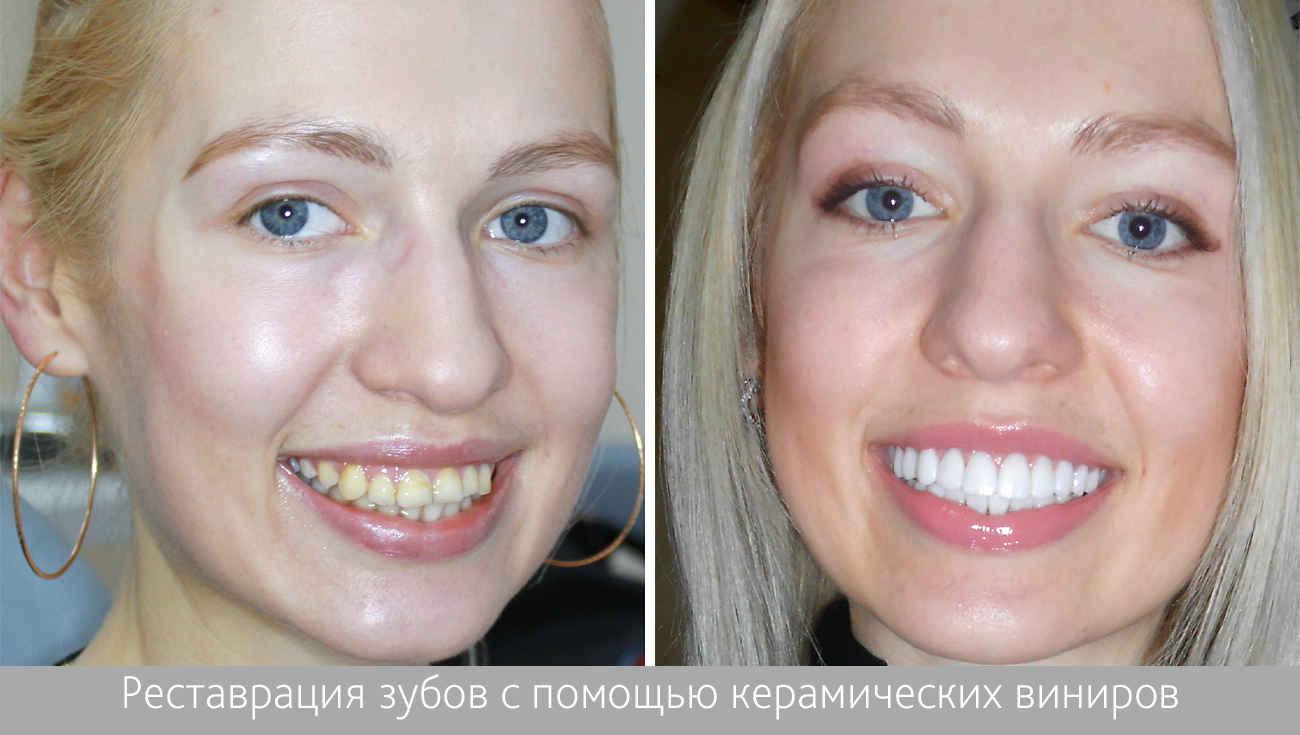 Виниры до и после фото