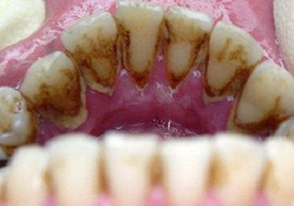 Зубные отложения фото