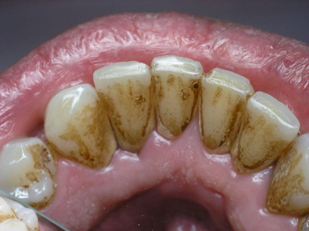 От чего на зубах оранжевый налет